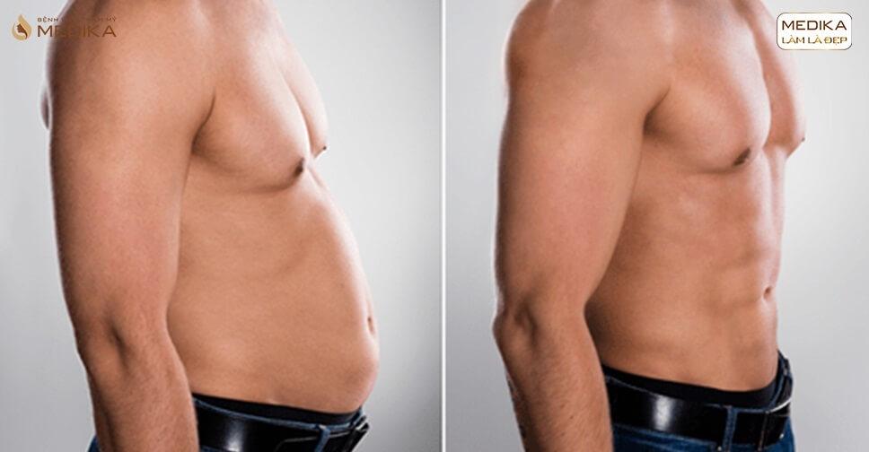 90 phút loại bỏ bụng bia hiệu quả - hút mỡ bụng nam giới