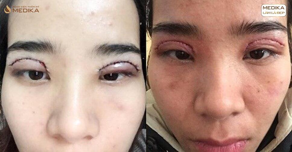 Cảnh báo khi chọn cắt mí mắt và cách phòng tránh biến chứng