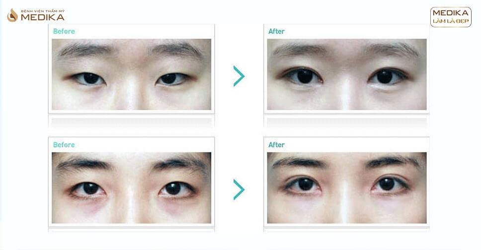 Cắt mí mắt và bấm mí mắt khác nhau như thế nào?