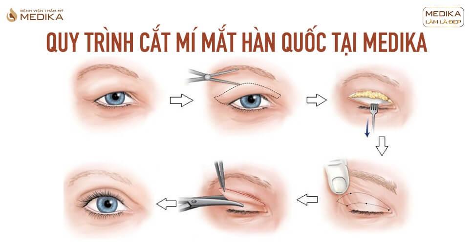 Có nên đi cắt mí mắt Hàn Quốc trong mùa dịch bệnh CORONA?