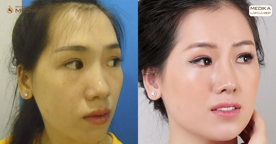 Giữa mùa dịch virus Corona có nên đi cắt mí mắt?