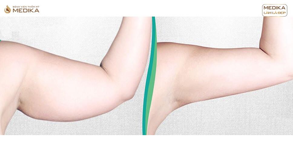 Hút mỡ tay – Giải pháp sở hữu đôi tay nuột nà sau 90 phút