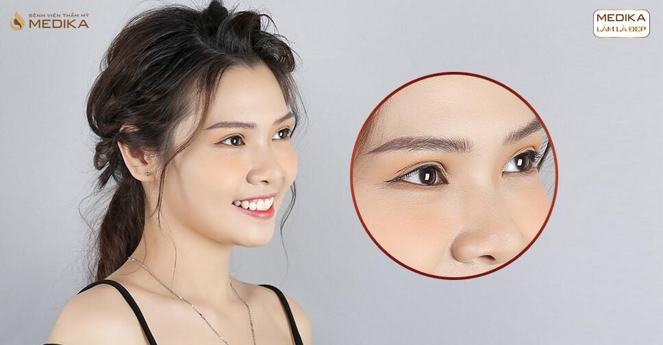 Mở rộng góc mắt trong được phẫu thuật như thế nào?