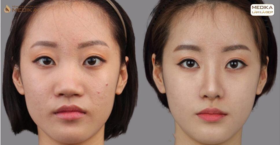Mở rộng góc mắt trong sau bao lâu thì hồi phục?