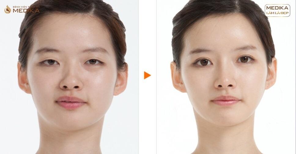 Một số triệu chứng sau cắt mắt 2 mí và cách khắc phục