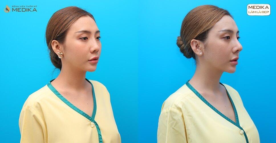 Nâng mũi bằng sụn sườn đã giúp các cô gái thay đổi ngoạn mục như thế nào? - MEDIKA.vn