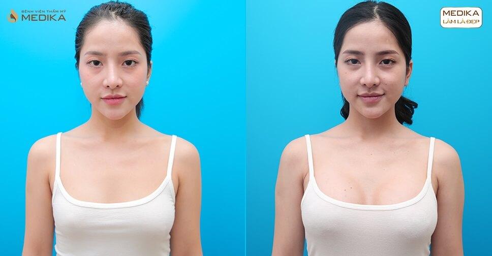 Nâng ngực đẹp mùa Corona là lựa chọn xuất sắc - Bệnh viện thẩm mỹ MEDIKA