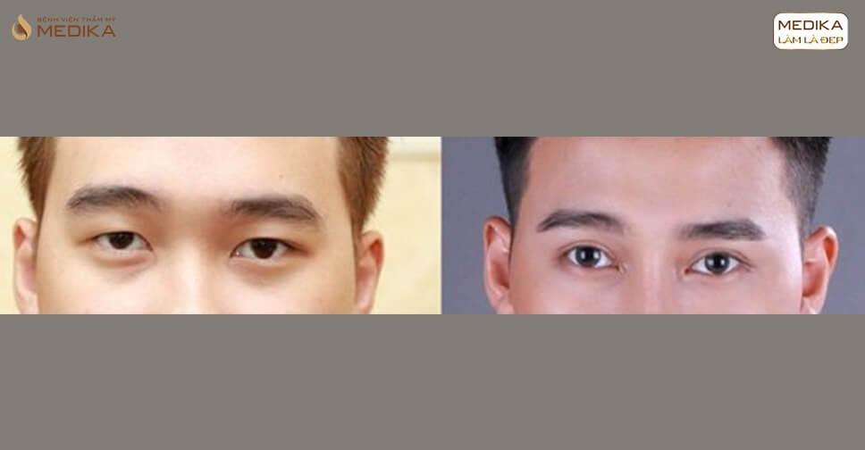 Nguyên nhân mắt bị sưng khi bấm mí mắt?
