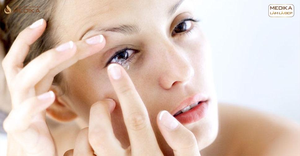 Sau cắt mí mắt hàn quốc khi nào có thể đeo kính áp tròng hay bơi lội?