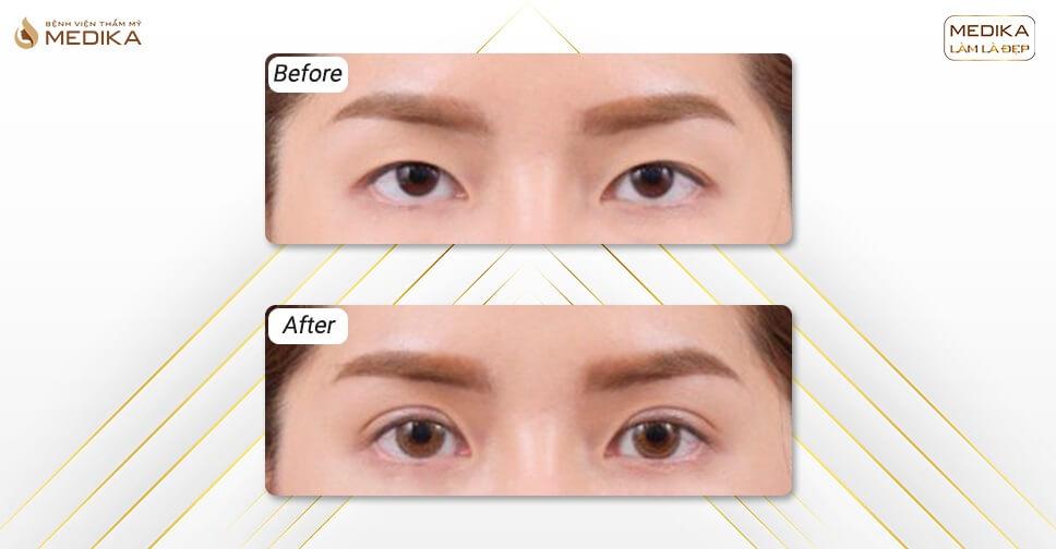 3 Cách chữa sụp mí mắt đẹp như bấm mí không phải ai cũng biết
