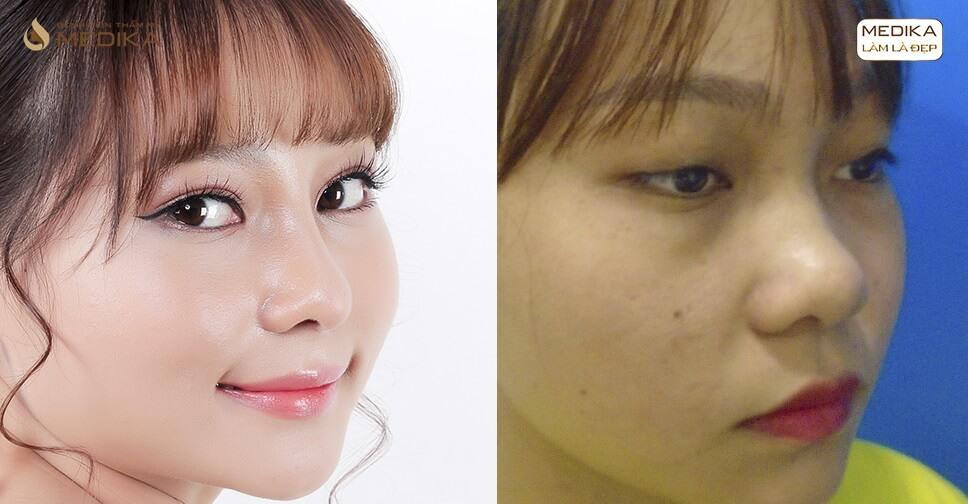 Bấm mí Hàn Quốc có gây hại cho đôi mắt không?