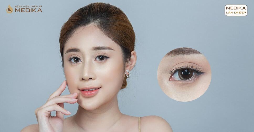 Bấm mí mắt đẹp: Vì sao không nên chủ quan