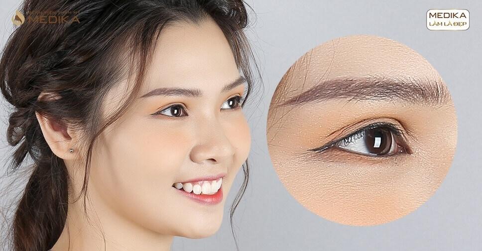 Bấm mí mắt xong có thể thực hiện bắn mắt cận được không?
