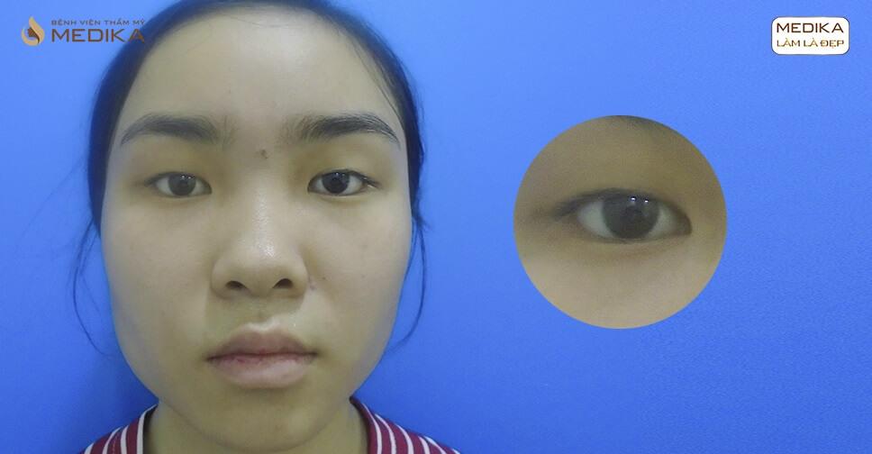 Cắt mí mắt hàn quốc trong 1 tháng có hồi phục được kịp không?