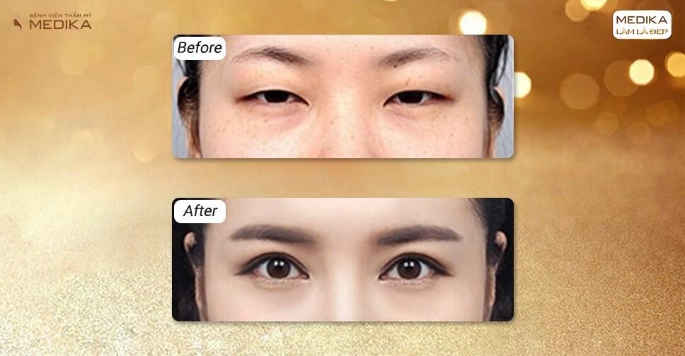 Chia sẻ hành trình phẫu thuật mắt to của cô nàng 23 tuổi