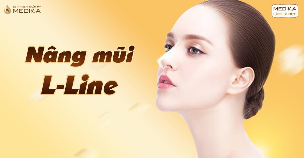 Chia sẻ kinh nghiệm nâng mũi L line cho các phái đẹp châu Á - MEDIKA.vn