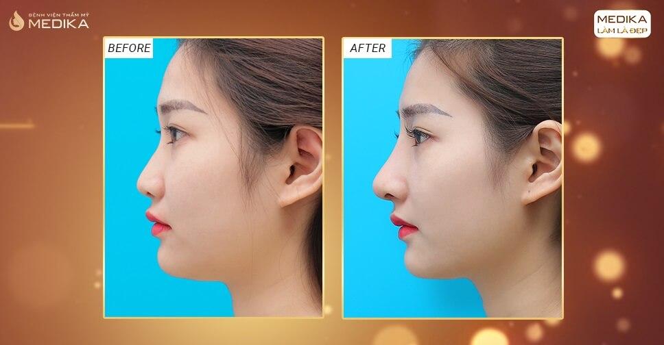 Có nên thực hiện những phương pháp nâng mũi bằng sụn nhân tạo? - Bệnh viện thẩm mỹ MEDIKA