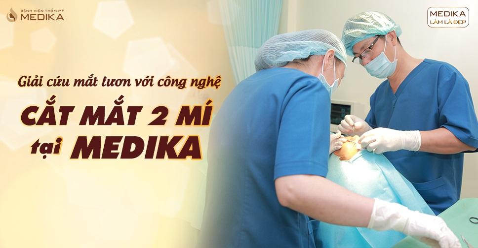 Giải cứu mắt lươn với công nghệ cắt mắt 2 mí tại MEDIKA