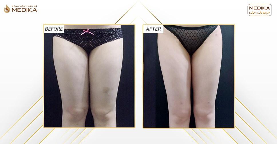 Hút mỡ đùi: cách phân biệt đùi cơ với đùi mỡ