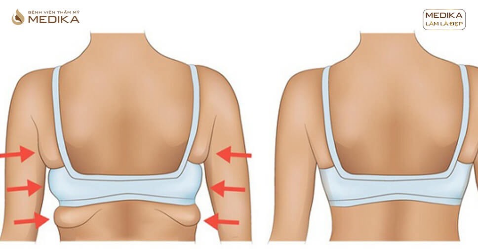Hút mỡ lưng giảm mỡ nhanh chóng chỉ sau 90 phút