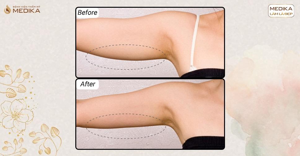 Hút mỡ ra có thể sử dụng bơm nâng ngực không?