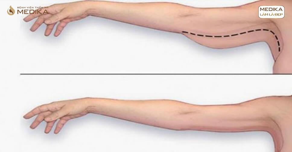 Hút mỡ tay có kết hợp căng da vùng tay không?