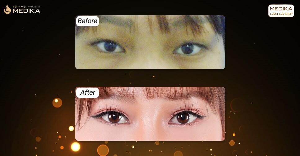 Khi cắt mí mắt sáng ngủ dậy bị sưng to nhưng tối lại xẹp nhỏ?