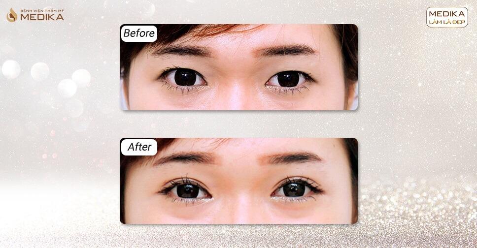 Kỹ thuật trang điểm cho nàng mắt một mí đẹp tự nhiên trước khi bấm mí