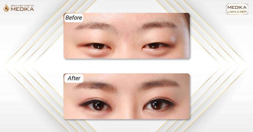Lấy mỡ mí mắt có để lại sẹo hay không?