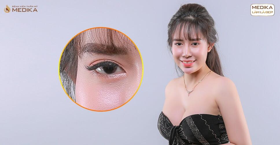 Mắt 1 mí nhỏ có cắt mắt hai mí được không?