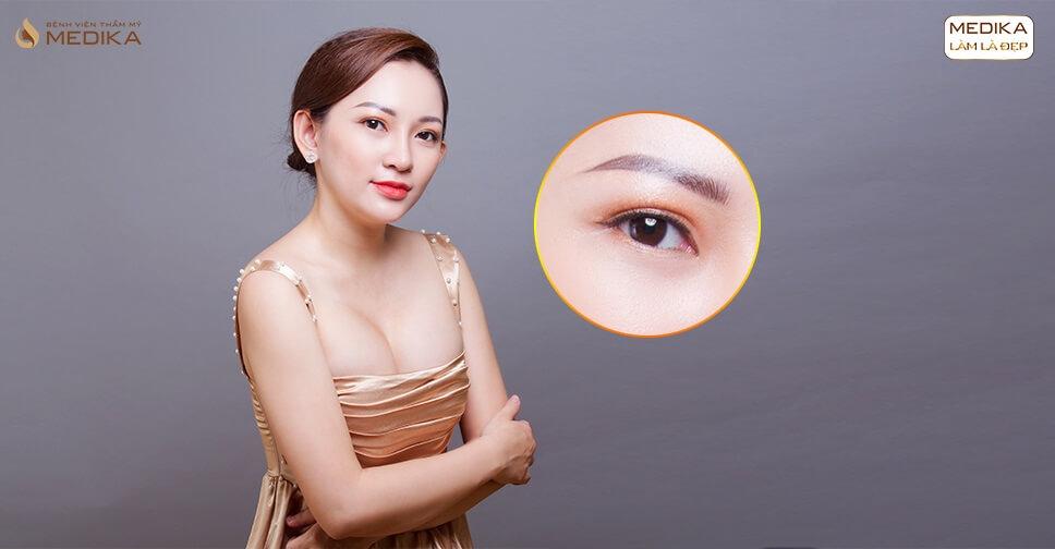 Mắt hai mí không rõ có nên mở rộng góc mắt trong?