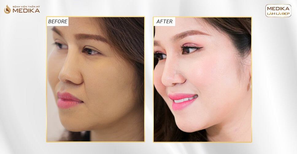 Mũi tẹt và da đầu mũi mỏng thì có nâng mũi bọc sụn được không? - Bệnh viện thẩm mỹ MEDIKA
