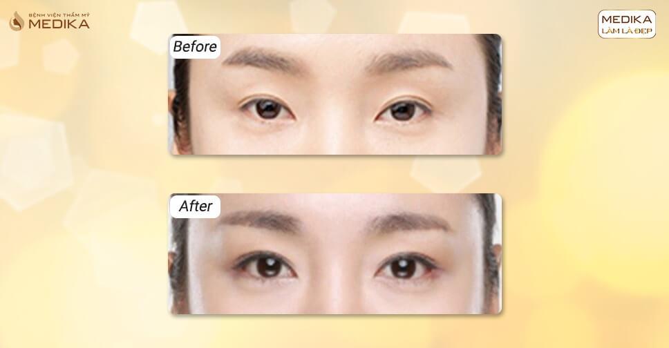 Nâng sống mũi giữa 2 mắt và mở rộng góc mắt có được không?
