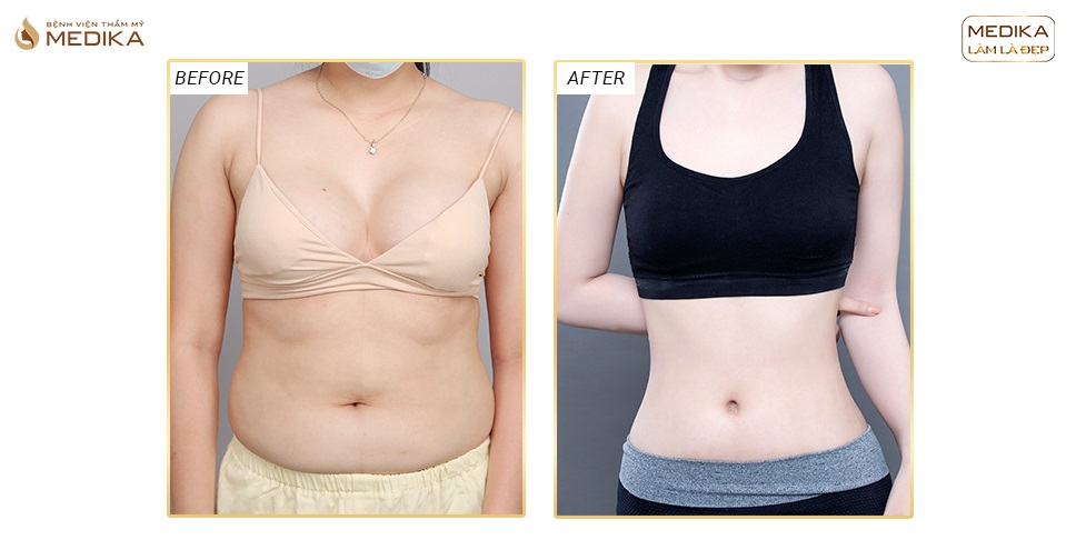Nên hút mỡ bụng hay uống thuốc giảm cân?