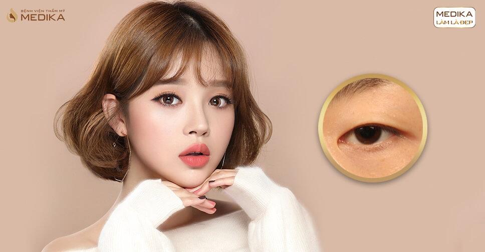 Phẫu thuật lấy mỡ mí mắt và cắt da thừa ở đâu?