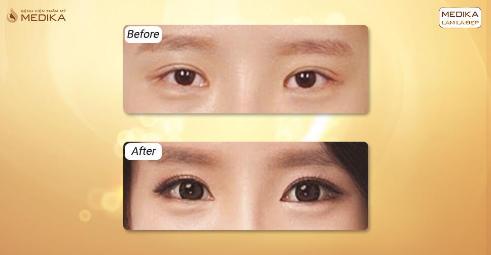 Phẫu thuật mắt to có nguy hiểm không?