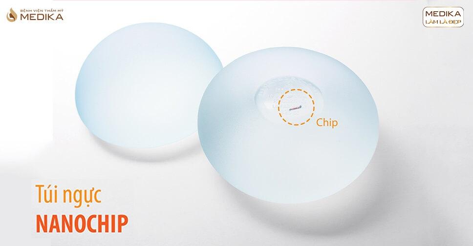 Túi vòng 1 Nano Chip - Bệnh viện thẩm mỹ MEDIKA