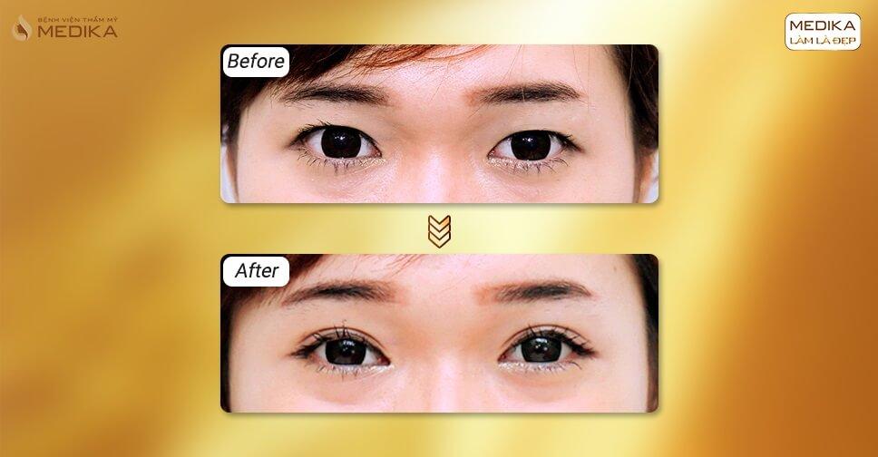Bấm mí mắt cho nam giới giữ được hiệu quả bao lâu?