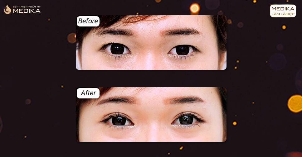 Cắt mắt 2 mí sau 2 tháng đôi mắt đẹp không thua gì minh tinh màn bạc