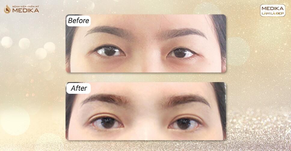 Cắt mắt 2 mí phương pháp biến mắt lương thành mắt biếc