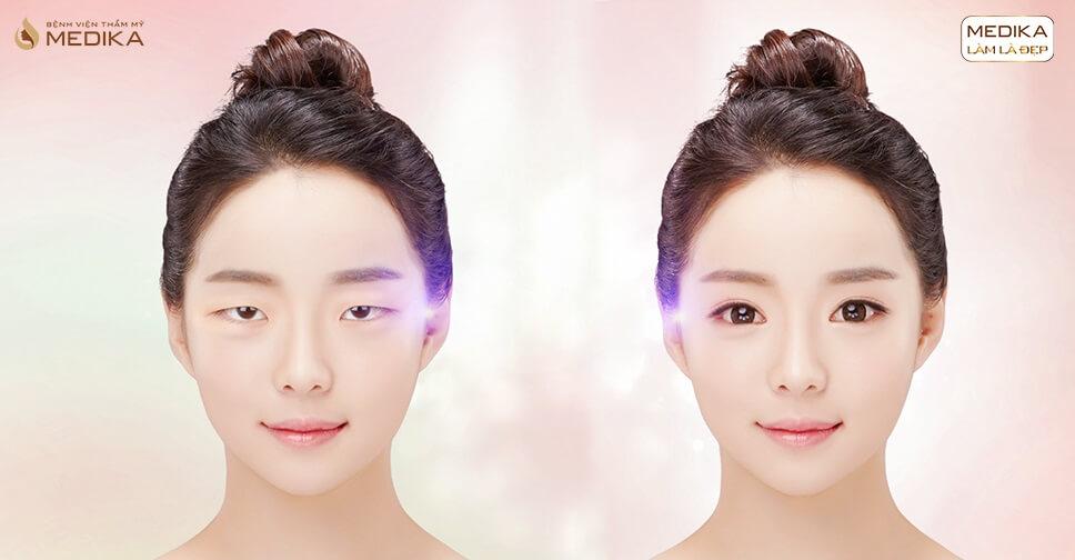Cắt mắt 2 mí, phương pháp tạo đôi mắt xinh đẹp