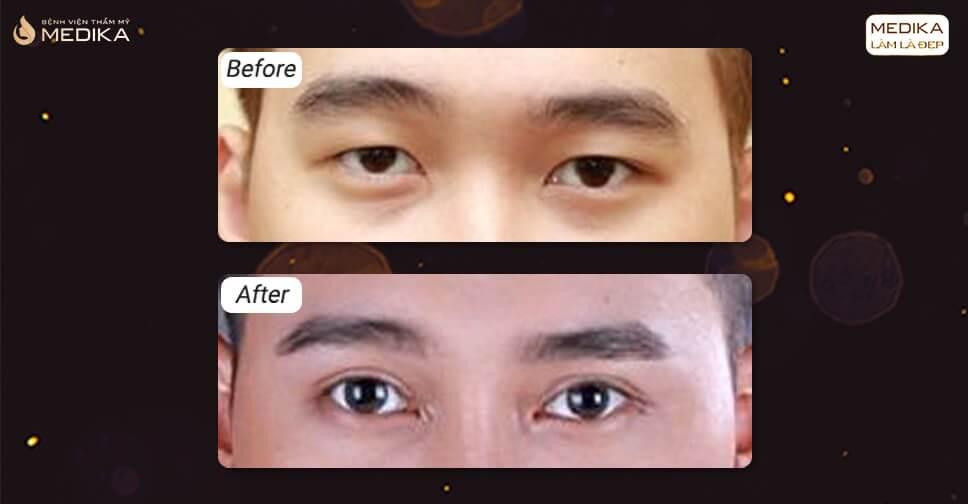 Cắt mí mắt Hàn Quốc, mang lại vẻ đẹp nên thơ cho đôi mắt