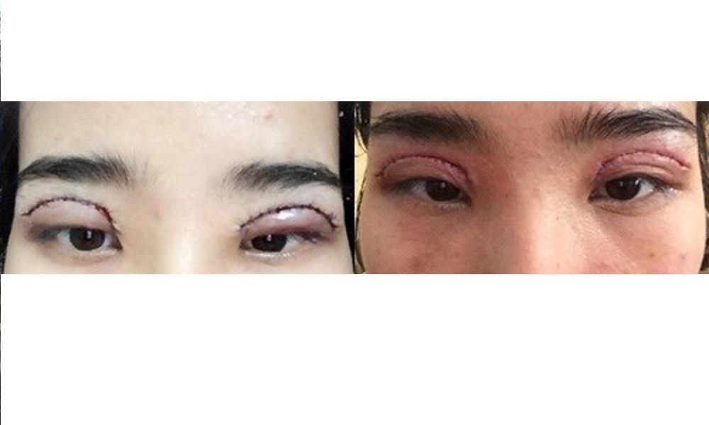 Hậu quả khôn lường khi cắt mắt 2 mí quá to
