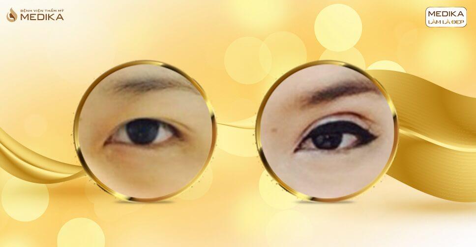 Lấy mỡ mí mắt, tiểu phẫu đơn giản nhưng kết quả rạng ngời