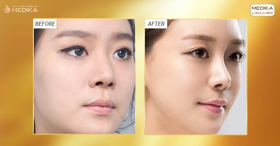 Nâng mũi S Line - Tôn tạo dáng mũi đẹp hiện đại - Bệnh viện thẩm mỹ MEDIKA