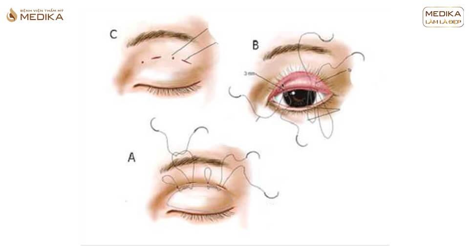 Sau khi tháo chỉ bấm mí mắt có trở lại như trước không?