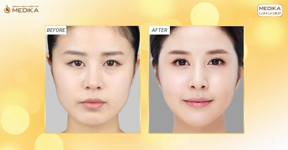 Sự thật về độn cằm V line có thể gây biến dạng khuôn mặt