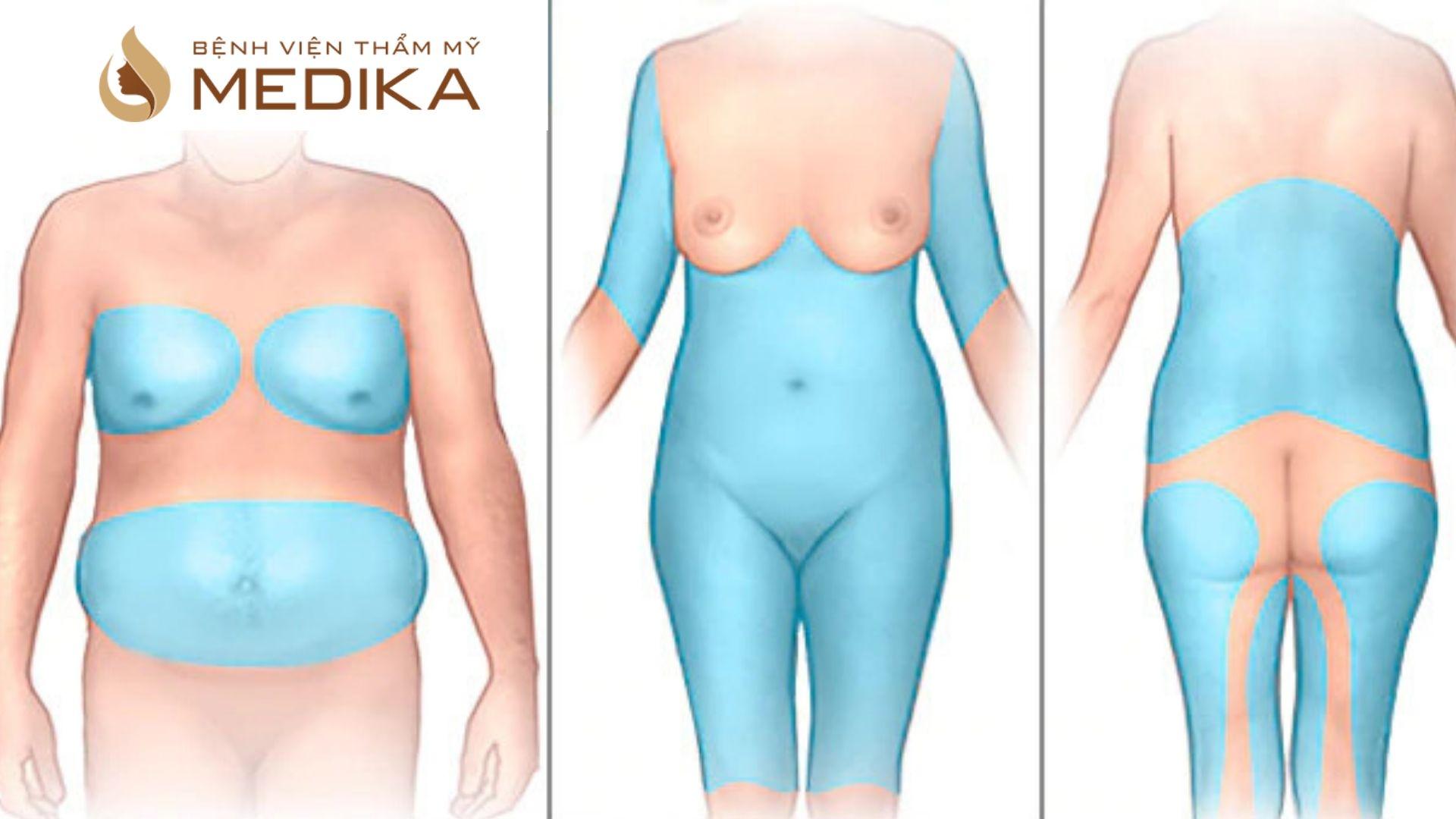 Nguyên nhân lâu hồi phục sau hút mỡ và mẹo massage giảm mỡ