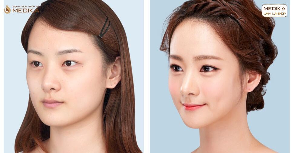 bấm mí mắt người dưới 18 tuổi có thể thực hiện được không ?