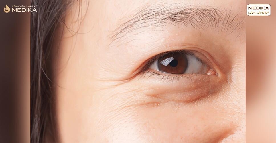 Dấu hiệu lão hóa ở mắt cho thấy sức khỏe đôi mắt yếu đi